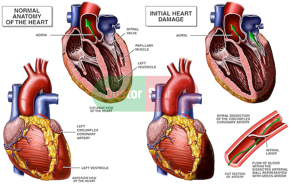 Coronary Artery Disease (Arterial Dissection). Compares normal heart anatomy with one displaying ventricle damage caused by a dissected right coronary artery.