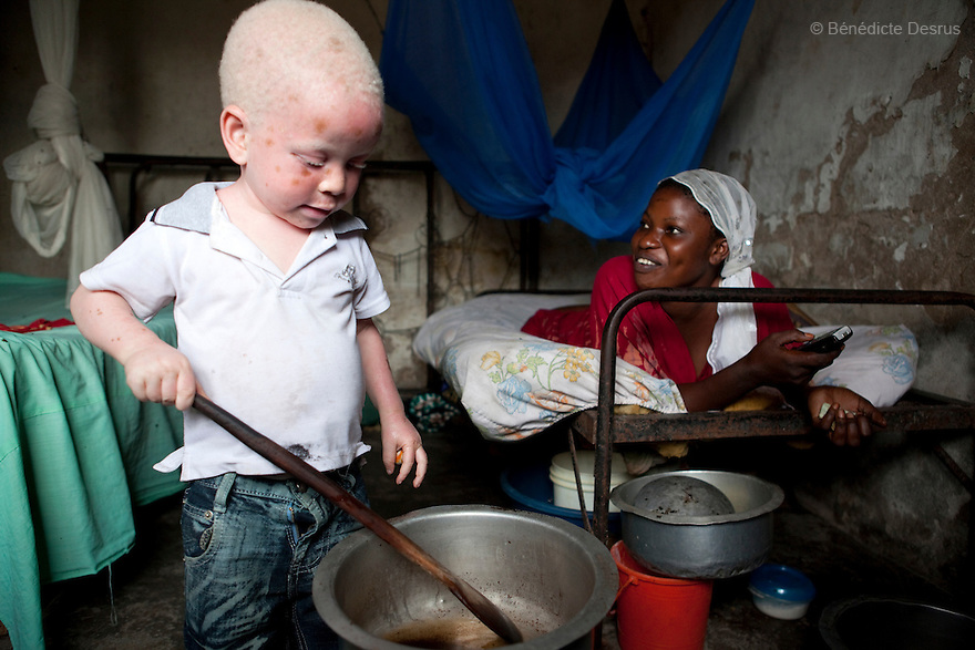 June 30, 2010 - Dar es Salaam, Tanzania - Yusufu Sereman and his aunt at home. Mwanahawa Yusufu is a 27 year old woman without albinism. She lives with her 2 year old albino son, Yusufu Sereman, in a 6 m2 rented room in Dar es Salaam. When she gave birth to Yusufu, her husband got very angry and left her saying that she had slept with a musungu, a white man. Since then, she has never heard from him. Mwanahawa survives as a single parent roasting and selling Cassava and other small food items. Her son Selemani already has badly damaged skin from exposure to the sun, but she cant get him treat because she has difficulties to pay for the treatments. Usually developing by a very young age a facial rash of dark melanomas is often the precursor of the skin cancer that kills so many albinos in early adulthood. Albinism is a recessive gene but when two carriers of the gene have a child it has a one in four chance of getting albinism. Tanzania is believed to have Africa' s largest population of albinos, a genetic condition caused by a lack of melanin in the skin, eyes and hair and has an incidence seven times higher than elsewhere in the world. Over the last three years people with albinism have been threatened by an alarming increase in the criminal trade of Albino body parts. At least 53 albinos have been killed since 2007, some as young as six months old. Many more have been attacked with machetes and their limbs stolen while they are still alive. Witch doctors tell their clients that the body parts will bring them luck in love, life and business. The belief that albino body parts have magical powers has driven thousands of Africa's albinos into hiding, fearful of losing their lives and limbs to unscrupulous dealers who can make up to US$75,000 selling a complete dismembered set. The killings have now spread to neighboring countries, like Kenya, Uganda and Burundi and an international market for albino body parts has been rumored to reach as far as West Africa. Photo c