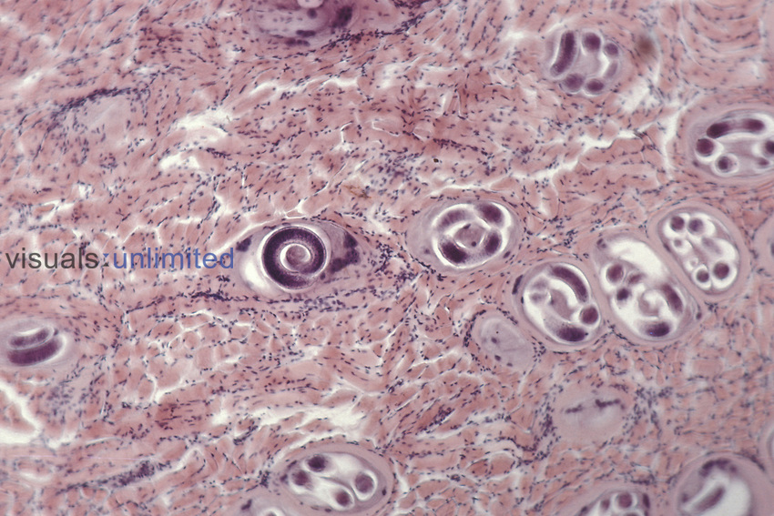 Parasitic Nematodes encysted in muscle (Trichinella spiralis). LM X36