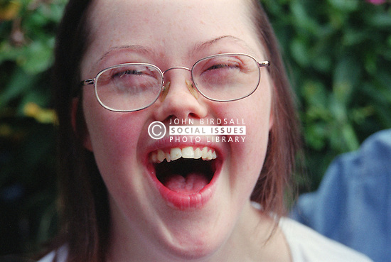 Portrait of teenage girl with Downs Syndrome laughing with mouth wide open,