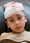 MOHAB ELBARGHY, 9 YEARS OLD, INJURED IN A BOMBING RAID BY GADAFFI FORCES THIS MORNING ON A RESIDENTIAL AREA OF THE CITY. THE BOMB EXPLODED ON THE ROOF OF THE ROOM WHERE HE WAS SLEEPING..JALA HOSPITAL, BENGHAZI..19-3-2011 PIC BY IAN MCILGORM