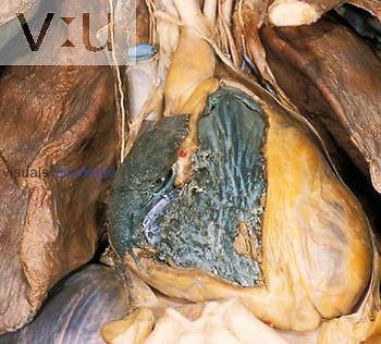 Right atrium and ventricle dissection
