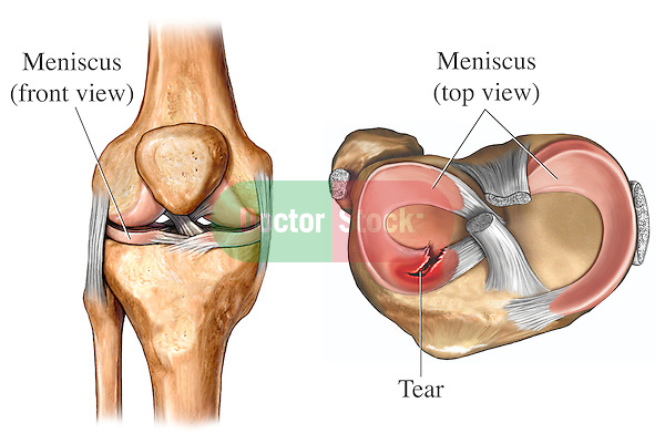 Torn Meniscus Doctor Stock