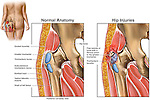 Trochanteric (Hip) Bursitis.