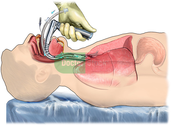 Proper Laryngoscopic Endotracheal Intubation
