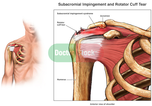 Subacromial Impingement and Rotator Cuff Tear Injury of the Shoulder.