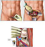 Low Back Surgery - L4-5 Anterior Lumbar Spinal Fusion. This medical illustration series pictures the following: 1. Incision into the low abdomen anteriorly, 2. Deep dissection with exposure of the anterior lumbosacral spine, and 3. Placement of collagen sponge cages at L4-5 bilaterally for fusion of the spine. Labels have intentionally been left off of this exhibit for varied use.