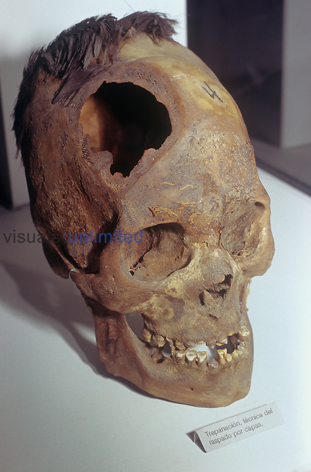 Trepanation of the skull is an ancient practice, still used today in certain groups, that was supposed to cure various brain ailments and improve a person's well being. This skull from Peru shows its use by the Paracas culture.