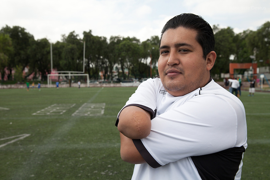 """Amhed Yibran Lopez Hernandez, goalkeeper of Guerreros Aztecas, do warm up before a match against Los Dragones (""""the Dragons"""") in Deportivo Tlalli II in Talnepantla, Mexico on September 27, 2014. Amhed, 29, lost his right arm at the age of 12, in an accident at his grandfather's workshop. He works as an administrator for the local government and joined Guerreros Aztecas in May 2014. Guerreros Aztecas (""""Aztec Warriors"""") is Mexico City's first amputee football team. Founded in July 2013 by five volunteers, they now have 23 players, seven of them have made the national team's shortlist to represent Mexico at this year's Amputee Soccer World Cup in Sinaloa this December. The team trains twice a week for weekend games with other teams. No prostheses are used, so field players missing a lower extremity can only play using crutches. Those missing an upper extremity play as goalkeepers. The teams play six per side with unlimited substitutions. Each half lasts 25 minutes. The causes of the amputations range from accidents to medical interventions – none of which have stopped the Guerreros Aztecas from continuing to play. The players' age, backgrounds and professions cover the full sweep of Mexican society, and they are united by the will to keep their heads held high in a country where discrimination against the disabled remains widespread. (Photo by Bénédicte Desrus)"""