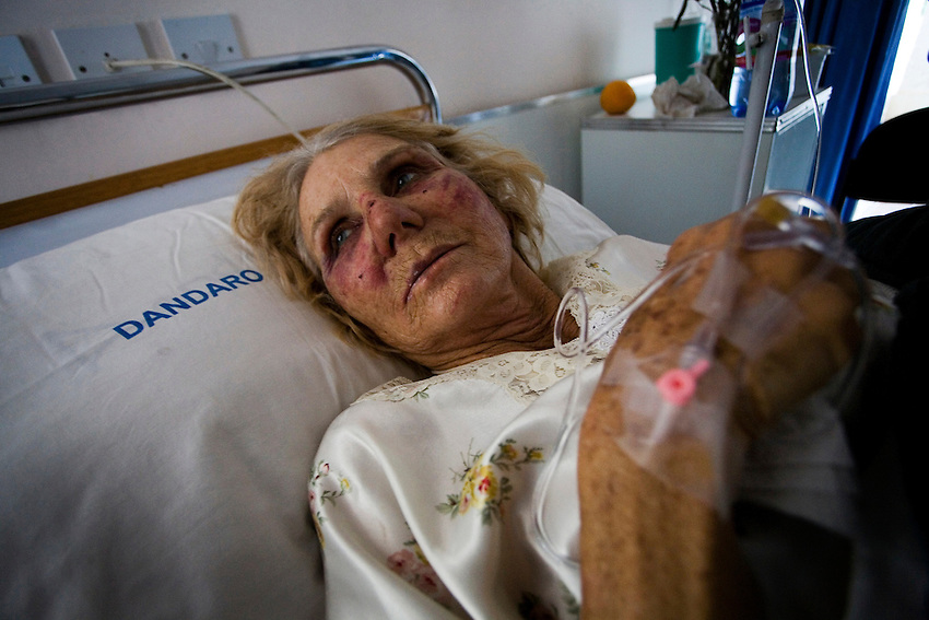 Angela Campbell (66), a white Zimbabwean woman who was beaten and tortured by Zanu-PF supporters during an attack at her family's farm, is photographed at a hospital in Harare, Zimbabwe, Monday, June 30, 2008. Her husband and son-in-law were also beaten and tortured during the attack.