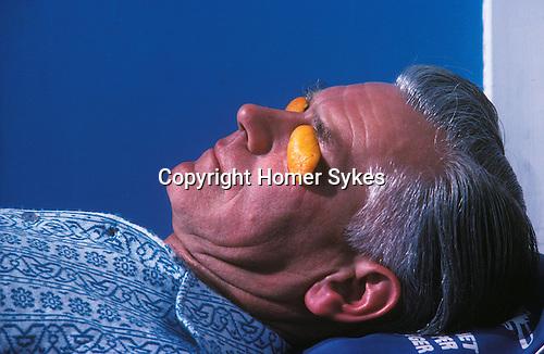 Middle aged man with orange peel eye protectors sunbathing Blackpool Lancashire. Uk Circa 1980.