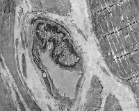 CAPILLARY<br /> Capillary, Muscle And Collagen, TEM 6,000x mag<br /> Transmission electron microscope image of a mammalian blood capillary bordered by striated skeletal muscle and collagen fibers.  Evident in the capillary is the endothelial cell, its nucleus, and its sealing junctions.