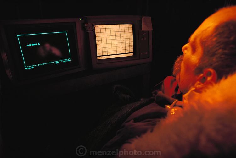 Medicine: Dr. Lance Meagaer, a patient with Amyotrophic Lateral Sclerosis (ALS), is linked to the computer by a microchip in his skull. By looking at the screen he can control the computer. Seen at home in Cannon Beach, Oregon. MODEL RELEASED (1988)