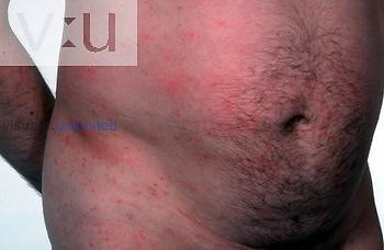 A contagious cutaneous inflammation caused by the bite of the mite SARCOPTES SCABIEI. It is characterized by pruritic papular eruptions and burrows and affects primarily the axillae, elbows, wrists, and genitalia, although it can spread to cover the entire body.