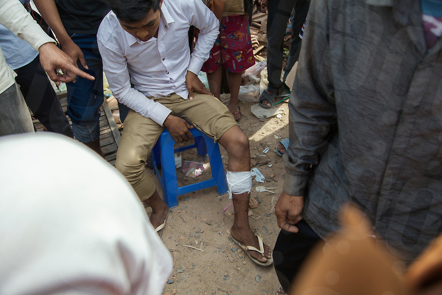 03 January, 2014 - Phnom Penh. A man shot in the leg received assitance by other protesters. © Thomas Cristofoletti / Ruom 2014
