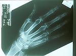 x-ray of hand showing broken small finger (metacarpal)