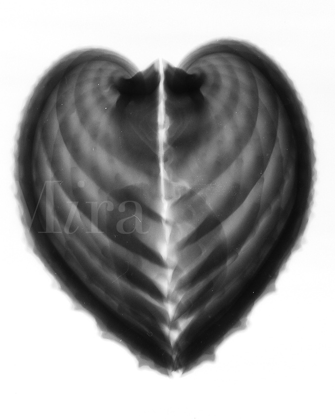 Xray Ark clam shells