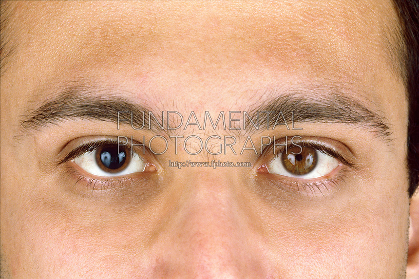HUMAN EYE<br /> Dilated &amp; constricted pupil<br /> In low light the pupil dilates, in bright light the pupil constricts.