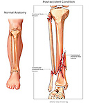 Broken Lower Leg - Pilon Fracture. This medical exhibit illustrates a comminuted, compound and displaced fracture of the lower right leg. It is also known as a Pilon fracture.