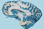 Human brain mid-sagittal section stained to show the gray and white matter.