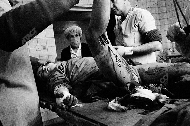 A wounded girl on the operating table at Jamuriat Hospital.  Hundreds of wounded were coming in from rocket attacks pounding the city of Kabul, Afghanistan. 1993.