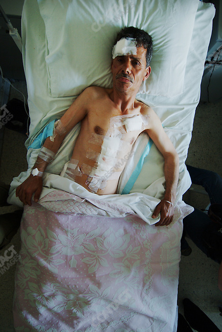 Marwan Handash, an agricultural worker, was wounded from a missile fired from Fatah Al Islam.  He ws being treated for his injuries at the Al Khair hospital. Near Tripoli Lebanon, May 21, 2007