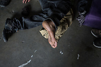 MEXICALI, MEXICO - February 20. A migrant show the blisters on his foot in the Alfa y Omega Shelter on February 20, 2019 in Mexicali, Mexico.<br />  A new group of Central American migrants arrived to the city, mostly young men. Some manifest their desire to remain on Mexican soil but for others the idea of crossing the border fence is still attractive.<br /> US President Donald Trump uses emergency powers to secure funding for his proposed US-Mexico border wall. In this case, Trump has claimed there is a migration crisis on the US-Mexico border.<br /> (Photo by Luis Boza/VIEWpress)