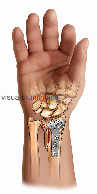 Biomedical illustration of the fixation of a distal radius fracture.