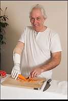 BNPS.co.uk (01202) 558833.Picture: Peter Willows..Chris can now enjoy everyday chores, like peeling carrots..Chris Taylor has become the first in the UK to be fitted with a bionic limb that has electronic fingers and thumb. Chris (58) from Ivybridge, Devon, lost his right hand when he fell off a jet-ski in 2009, but he has now been fitted with the £47,000 limb by specialists Dorset Orthopaedic.  Electrodes in the arm are able to sense muscle movements, and these signals are used to control electronic motors that move the fingers. Chris can now hold and grip a variety of different-sized objects, allowing him to carry out complex wiring work for his job as a service engineer.