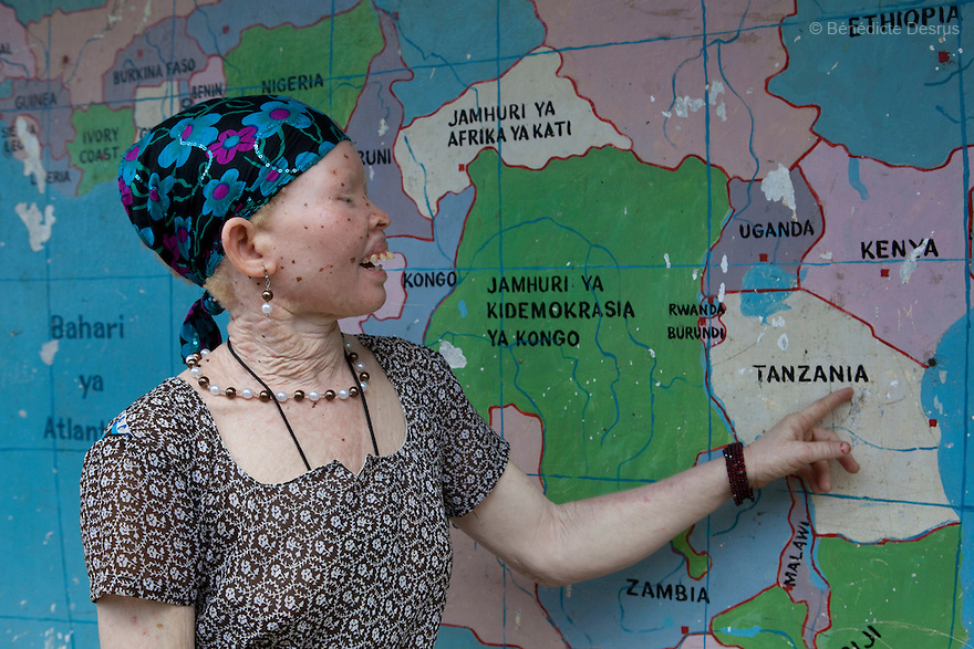 June 15, 2010 - Dar Es Salaam, Tanzania - An albino woman point at Tanzania on a world map. Tanzania is believed to have Africa' s largest population of albinos, a genetic condition caused by a lack of melanin in the skin, eyes and hair and has an incidence seven times higher than elsewhere in the world. Over the last three years people with albinism have been threatened by an alarming increase in the criminal trade of Albino body parts. At least 53 albinos have been killed since 2007, some as young as six months old. Many more have been attacked with machetes and their limbs stolen while they are still alive. Witch doctors tell their clients that the body parts will bring them luck in love, life and business. The belief that albino body parts have magical powers has driven thousands of Africa's albinos into hiding, fearful of losing their lives and limbs to unscrupulous dealers who can make up to US$75,000 selling a complete dismembered set. The killings have now spread to neighboring countries, like Kenya, Uganda and Burundi and an international market for albino body parts has been rumored to reach as far as West Africa. Photo credit: Benedicte Desrus
