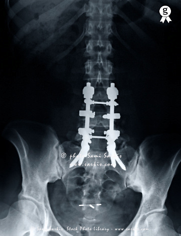 Woman's (42) hip with screw on spine, X-ray, On the L5-S1 vertebra spine osteo-synthesis screws used to fixate and stabilize the spine.<br />  (Licence this image exclusively with Getty: http://www.gettyimages.com/detail/98627206 )