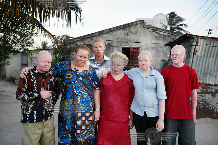 23 year old Adelina Mluge (centre, red dress) stands with her family who are all albino. Her father (left) used to chair the Tanzania Albino Society and her mother (second left) is a wedding planner. Adelina wants to become a TV presenter. She has finished secondary school and is attending a special six month course in broadcasting and commercial production at the Times School of Journalism (TSJ). This is in preparation for a two year course which will eventually grant her a Diploma in Journalism. Discrimination against albinos is a serious problem throughout sub-Saharan Africa, but recently in Tanzania albinos have been killed and mutilated, victims of a growing criminal trade in albino body parts fuelled by superstition and greed. Limbs, skin, hair, genitals and blood are believed by witch doctors to bring good luck, and are sold to clients for large sums of money, carrying with them the promise of instant wealth.