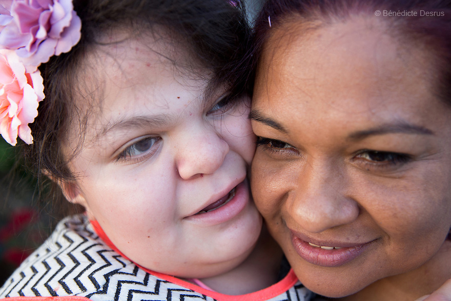 "Ana Ximena Navarro (L) and her aunt Gabriela Rios Ballesteros (R), are pictured in Guadalajara, Mexico on February 22, 2017. Ximena was diagnosed as an infant with Hurler syndrome. Hurler syndrome is the most severe form of mucopolysaccharidosis type 1 (MPS1), a rare lysosomal storage disease, characterized by skeletal abnormalities, cognitive impairment, heart disease, respiratory problems, enlarged liver and spleen, characteristic facies and reduced life expectancy. Ximena was being given enzyme replacement therapy (ERT) when she was 19 months old, and she was suddenly able to eat and sleep. She is now 12, and has normal hormonal development for her age, although some mental delay, according to her father. ""Without the treatment, she would have died from all the complications — untreated, children have a very bad quality of life and typically die before they are seven"", her father says. Photo credit: Bénédicte Desrus"