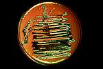 Escherichia coli Bacteria culture on EMB agar.