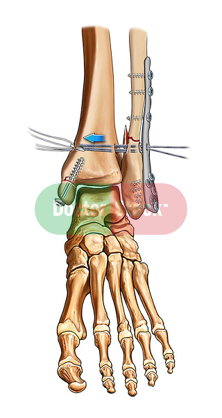 Syndesmosis fixation with tightrope device, fixation of medial malleolar fracture with cannulated screws and fixation of fibular fracture using a plate and cortical screws.