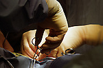 detail of surgeons hands holding clamp during surgery