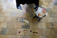 Blood on the OR floor after an Caesarean section. C-sections are very common at the hospital. Usually the women have been in labour for several days before they come to the hospital.