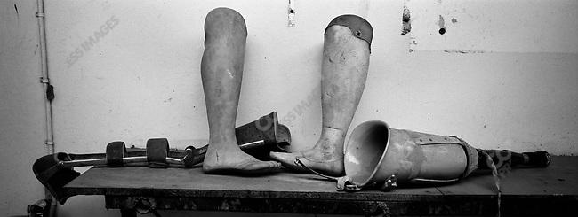 Artificial limbs. Orthopedic Center, Central Beira Hospital, Beira, Mozambique, November, 2001.