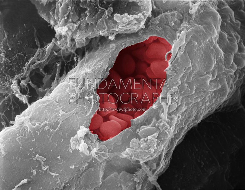 RED BLOOD CELLS - Blood vessel/Red Blood Cells Colorized SEM 4,200X mag<br /> Punctured small vein showing RBCs within
