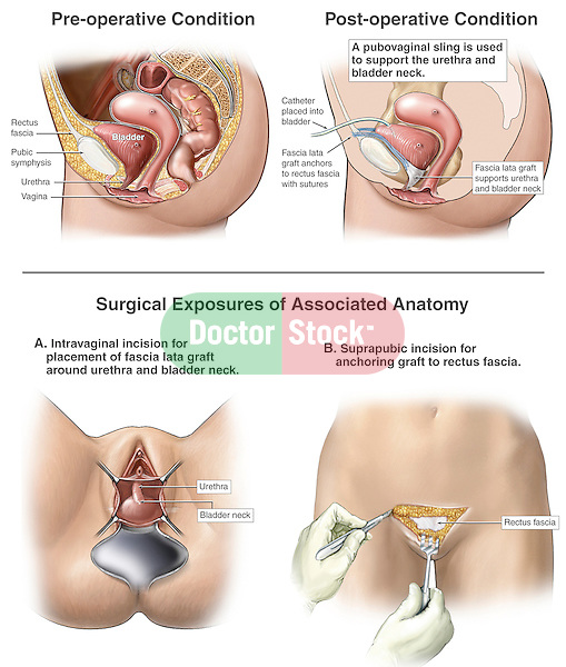 Urinary Incontinence Repair - Pubovaginal Sling Surgery.