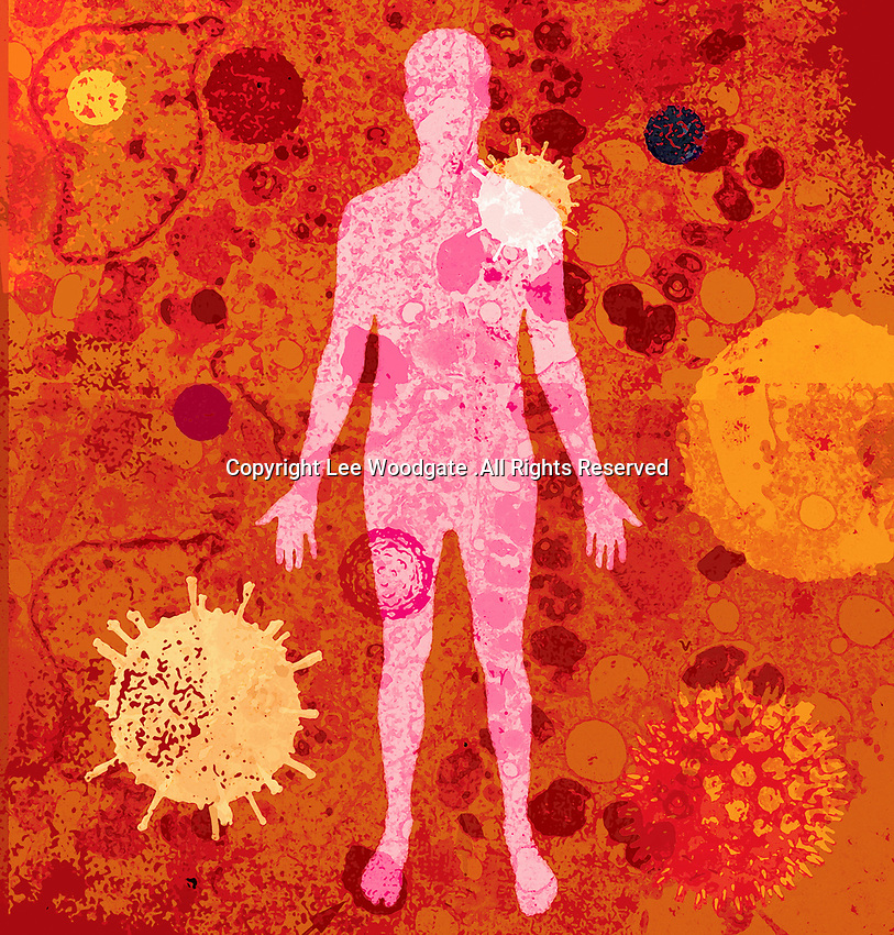 The human body with lots of different viruses