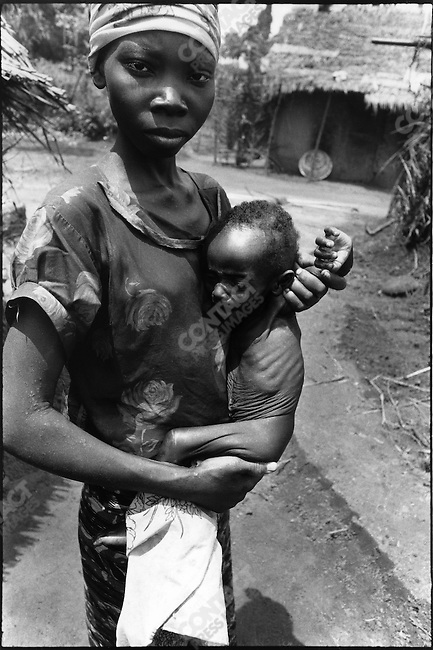 Starving Ibos, during the famine due to the civil war,  Biafra, Nigeria, July 1968
