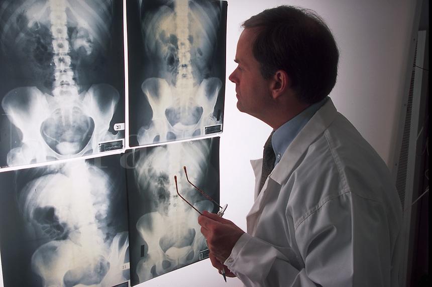 Doctor examining x-rays.
