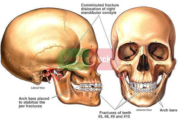 Fracture Dislocation of the Jaw with Fixation | Doctor Stock