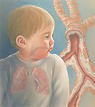 bronchial obstruction or asthma