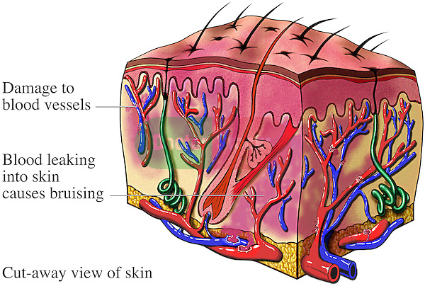 This stock illustration reveals a cut-away section through a bruised section of skin. It labels: damage to blood vessels and blood leaking into skin causes bruising.