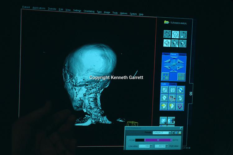CT scan monitor, test performed on mummy of Pharaoh Tutankhamun, 18th dynasty, Egypt, ca 1332-1322