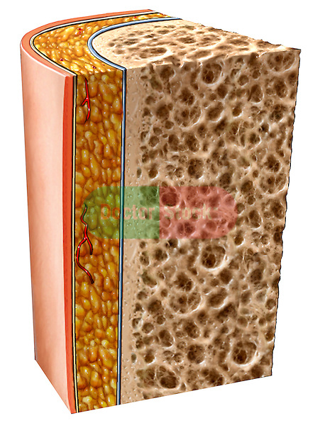 This medical illustration pictures a cross sectional cut away view of bone. It includes trabeculae,] cortical bone, fat, integument, and skin