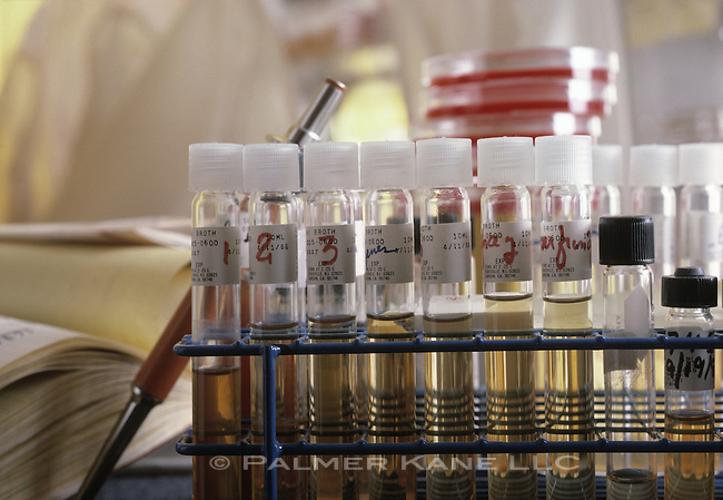 Test tube samples of blood plasma in a lab