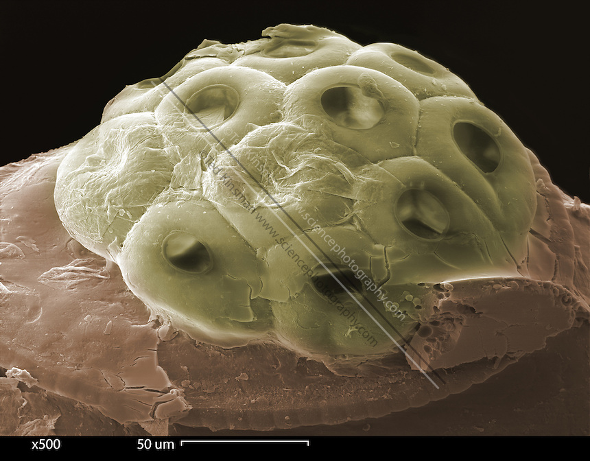 Scanning electron microscope (SEM) of the egg (nit) of a human head louse (Pediculus humanus).   Magnified 500x.